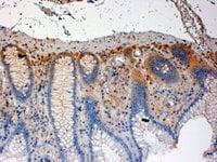 Immunohistochemistry (Formalin/PFA-fixed paraffin-embedded sections) - Anti-CSK antibody (ab744)