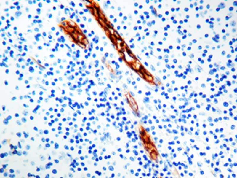 Immunohistochemistry (Formalin/PFA-fixed paraffin-embedded sections) - Anti-Von Willebrand Factor antibody [F8/86] (ab778)
