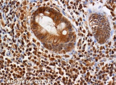 Immunohistochemistry (Formalin/PFA-fixed paraffin-embedded sections) - Anti-ATM antibody [2C1 (1A1)] (ab78)