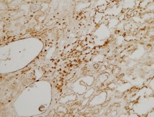 Immunohistochemistry (Frozen sections) - Anti-CD3 antibody (ab828)