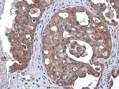 Immunohistochemistry (Formalin/PFA-fixed paraffin-embedded sections) - Anti-TSG101 antibody [4A10] (ab83)
