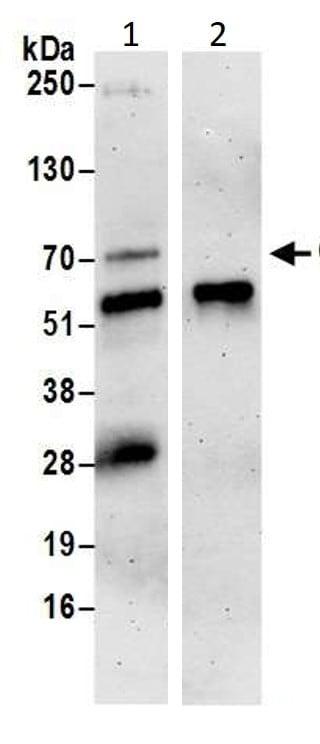 Immunoprecipitation - Anti-Cdc25A antibody (ab989)
