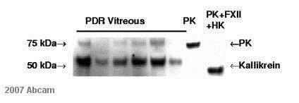 Western blot - Anti-Plasma Kallikrein 1B antibody [13G11] (ab1006)