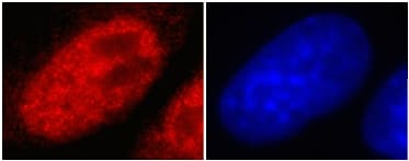 Immunocytochemistry - Anti-Histone H3 (tri methyl K4) antibody [mAbcam1012] - ChIP Grade (ab1012)