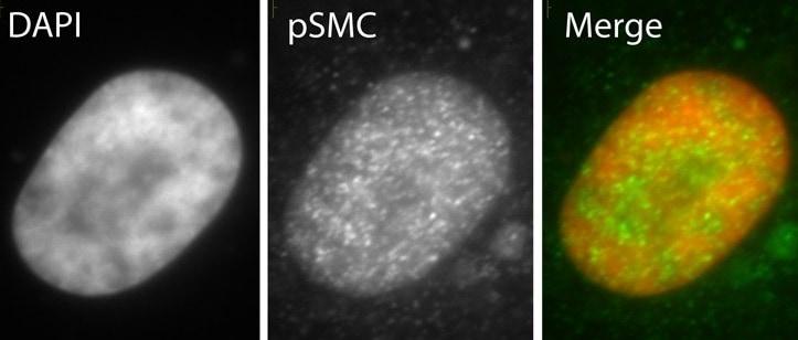 Immunocytochemistry/ Immunofluorescence - Anti-SMC1A (phospho S966) antibody (ab1276)