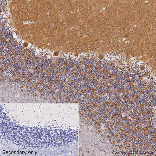 Immunohistochemistry (Formalin/PFA-fixed paraffin-embedded sections) - Anti-VEGFA antibody [VG-1] (ab1316)