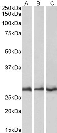 Western blot - Anti-CAPZB antibody (ab1338)