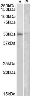 Western blot - Anti-DOK3 antibody (ab1357)