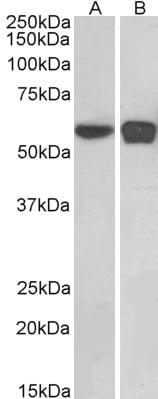 Western blot - Anti-PLRG1 antibody (ab1372)