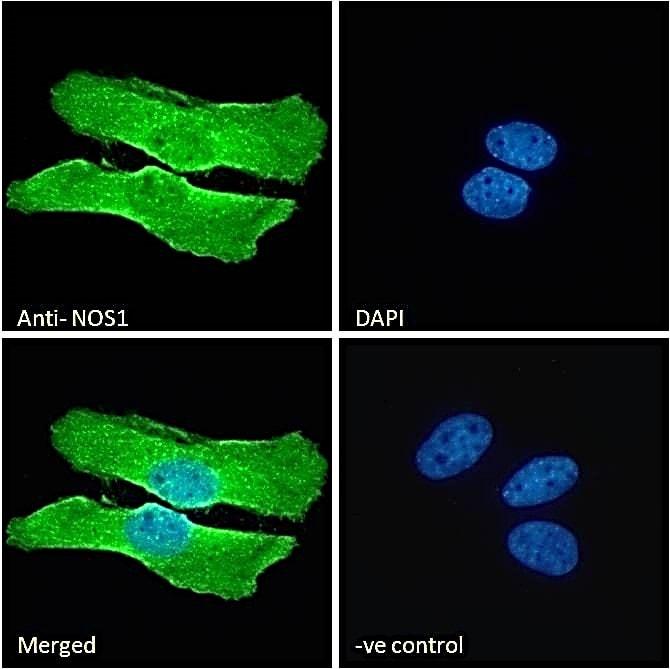 Immunocytochemistry - Anti-nNOS (neuronal) antibody (ab1376)