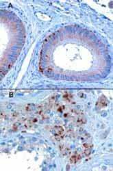 Immunohistochemistry (Formalin/PFA-fixed paraffin-embedded sections) - Anti-VPS35 antibody (ab10099)