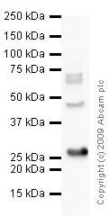 Western blot - Anti-PGP9.5 antibody (ab10404)