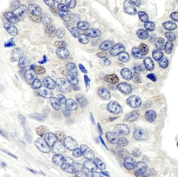 Immunohistochemistry (Formalin/PFA-fixed paraffin-embedded sections) - Anti-CSN1 antibody (ab10413)