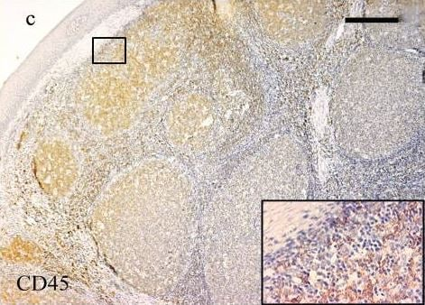 Immunohistochemistry (Formalin/PFA-fixed paraffin-embedded sections) - Anti-CD45 antibody (ab10558)
