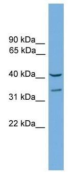 Western blot - Anti-FOXS1 antibody (ab104408)