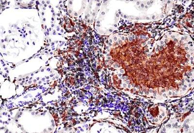 Immunohistochemistry (Formalin/PFA-fixed paraffin-embedded sections) - Anti-Iba1 antibody (ab107159)