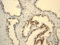Immunohistochemistry (Formalin/PFA-fixed paraffin-embedded sections) - Anti-Androgen Receptor antibody [ER179(2)] - ChIP Grade (ab108341)