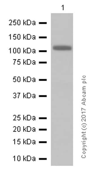 Western blot - Anti-Androgen Receptor antibody [ER179(2)] - ChIP Grade (ab108341)
