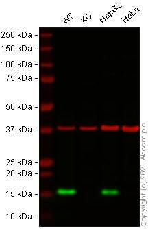 Western blot - Anti-Lysozyme antibody [EPR2994(2)] (ab108508)