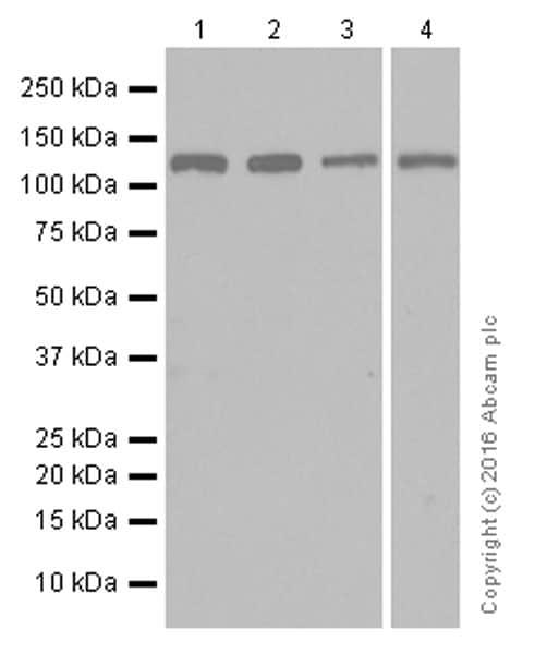 Western blot - Anti-JAK2 antibody [EPR108(2)] (ab108596)