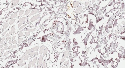 Immunohistochemistry (Formalin/PFA-fixed paraffin-embedded sections) - Anti-PGP9.5 antibody [EPR4118] (ab108986)