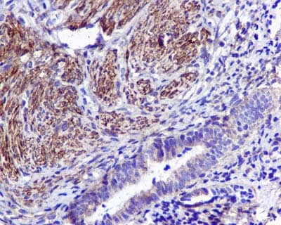 Immunohistochemistry (Formalin/PFA-fixed paraffin-embedded sections) - Anti-TWEAKR/FN14 antibody [EPR3179] (ab109365)