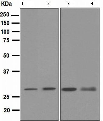 Western blot - Anti-Proteasome 20S C2 antibody [EPR5451] (ab109500)