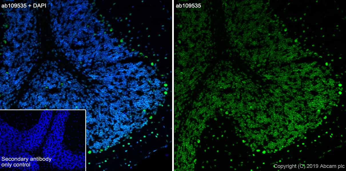Immunohistochemistry (Frozen sections) - Anti-TDP43 antibody [EPR5810] (ab109535)