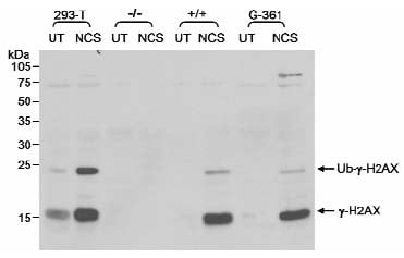 Western blot - Anti-gamma H2A.X (phospho S139) antibody (ab11174)