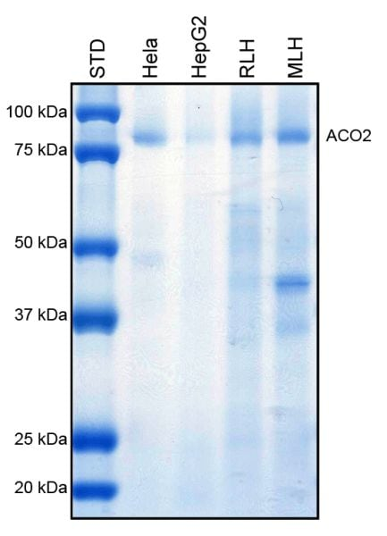 Immunoprecipitation - Anti-Aconitase 2 antibody [6D1BE4] (ab110320)