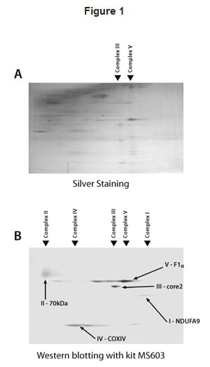 Western blot - MitoProfile® Total OXPHOS Blue Native WB Antibody Cocktail (ab110412)