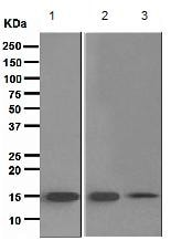 Western blot - Anti-TRAPPC2 antibody [EPR3401] (ab111848)