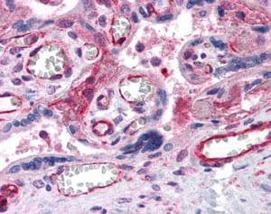 Immunohistochemistry (Formalin/PFA-fixed paraffin-embedded sections) - Anti-PTCHD2 antibody (ab113414)