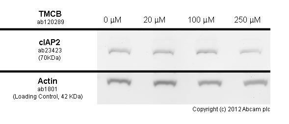Functional Studies - TMCB, Selective CK2 inhibitor (ab120289)