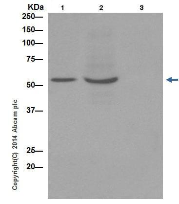 Immunoprecipitation - Z-VAD(OH)-FMK, Irreversible general caspase inhibitor (ab120382)