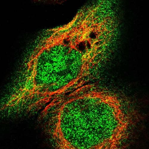 Immunocytochemistry/ Immunofluorescence - Anti-EDARADD antibody (ab121581)