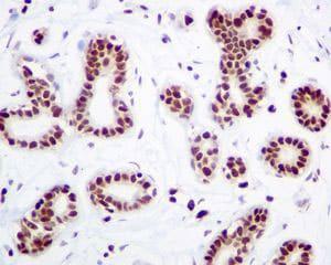 Immunohistochemistry (Formalin/PFA-fixed paraffin-embedded sections) - Anti-HMGB2 antibody [EPR6301] (ab124670)