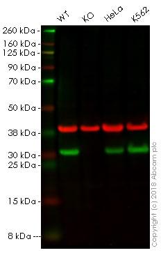 Western blot - Anti-HMGB2 antibody [EPR6301] (ab124670)