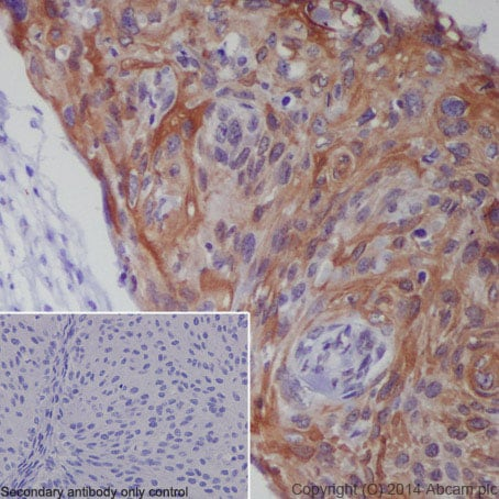 Immunohistochemistry (Formalin/PFA-fixed paraffin-embedded sections) - Anti-CXCR4 antibody [UMB2] (ab124824)