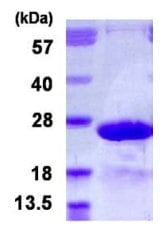 SDS-PAGE - Recombinant Human MYL7 protein (ab126669)