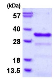 SDS-PAGE - Recombinant Human CHMP1B protein (ab126679)