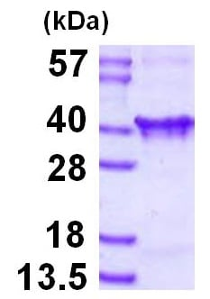 SDS-PAGE - Recombinant Human Clathrin light chain protein (ab126693)