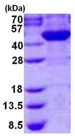SDS-PAGE - Recombinant Human Cyt 19 protein (ab126694)