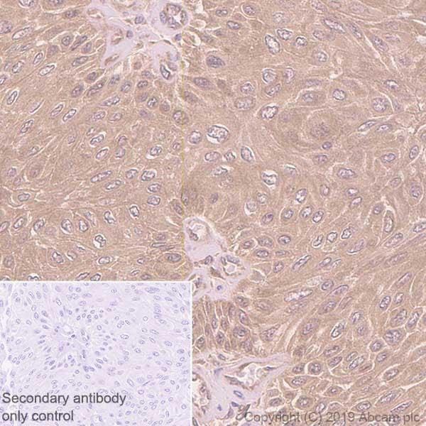 Immunohistochemistry (Formalin/PFA-fixed paraffin-embedded sections) - Anti-GCLM antibody [EPR6667] (ab126704)