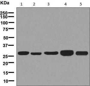 Western blot - Anti-MRPL28 antibody [EPR7578(B)] (ab126719)