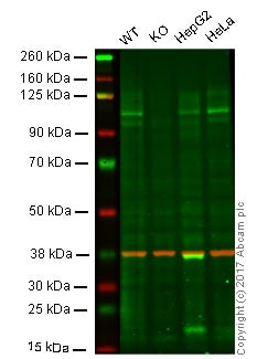 Western blot - Anti-Amyloid Precursor Protein antibody [EPR5118-34] (ab126732)