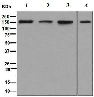 Western blot - Anti-ADAR1 antibody [EPR7033] (ab126745)
