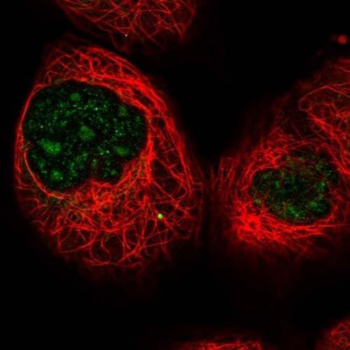Immunocytochemistry/ Immunofluorescence - Anti-IFT80 antibody (ab126784)