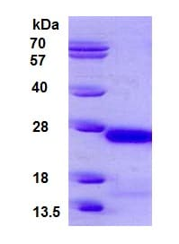 SDS-PAGE - Recombinant Human gamma C Crystallin protein (ab126922)