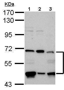 Western blot - Anti-PHD4/prolyl hydroxylase antibody (ab126943)